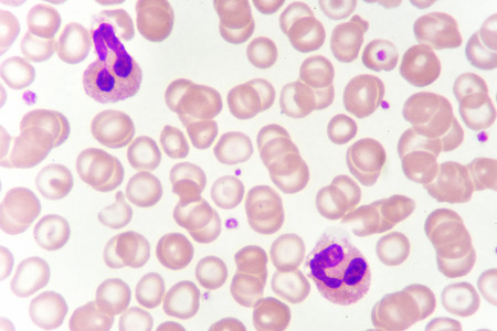 White blood cell in blood smear, analyze by microscope