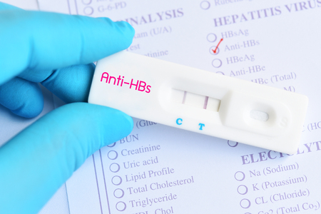 Detection of hepatitis B antibody by using rapid test cassette Stock Photo