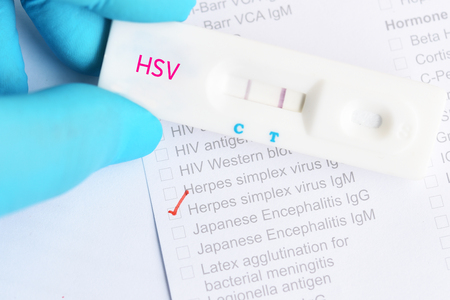 Herpes simplex virus positive test result by using rapid test cassette 版權商用圖片 - 106736586