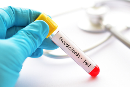 Blood sample tube for procalcitonin test