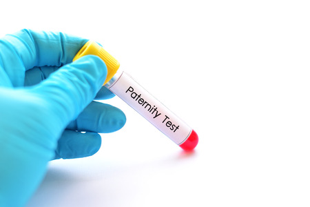 Test tube with blood sample for paternity test