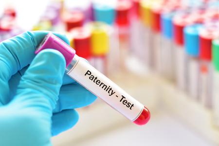 Tube à essai avec échantillon de sang pour test de paternité
