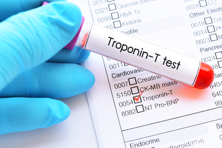 Blood sample tube for Troponin-T test