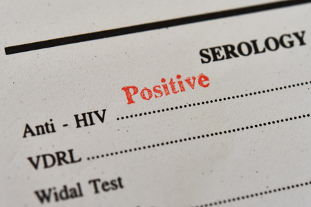 HIV positive test result