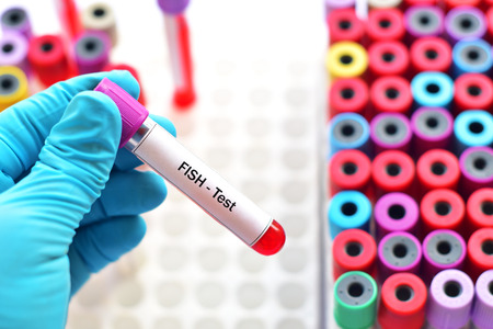 Blood sample for fluorescence in situ hybridization or FISH test