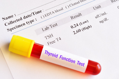 Hyperthyroidism result with blood sample tube Stock Photo