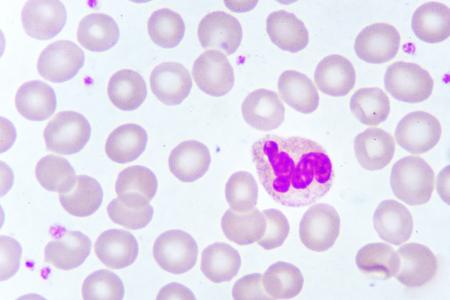 Neutrophil cell in blood smear, analyze by microscope