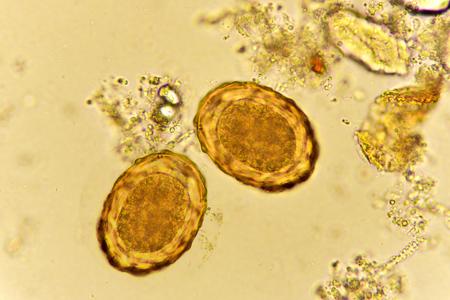 Eggs of Ascaris lumbricoides in stool Stock Photo