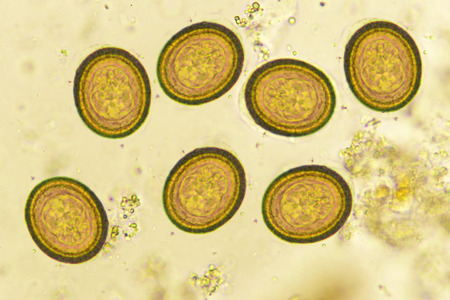 Eggs of Taenia in stool, analyze by microscope Stock Photo