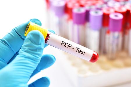Blood sample tube for FEP or free erythrocyte protoporphyrin test