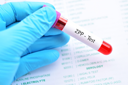 Blood sample tube for zinc protoporphyrin or ZPP test