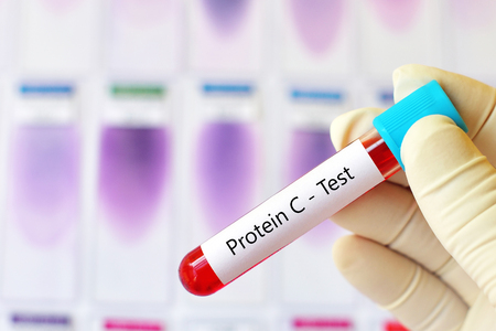 Test tube with blood sample for protein C test Stock Photo