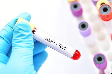 Blood sample tube for anti-Müllerian hormone or AMH test Stock Photo