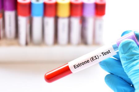 Blood sample tube for estrone hormone test