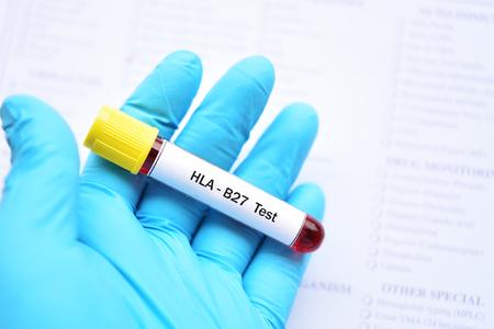 Blood sample tube for HLA-B27 test