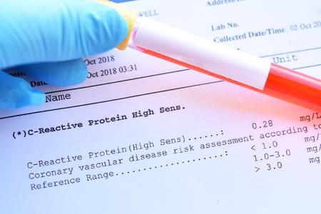 Normales Ergebnis des C-reaktiven Protein- oder CRP-Tests