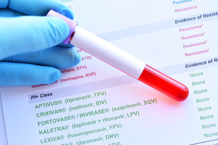 Laboratory results of HIV drugs resistance Stock Photo