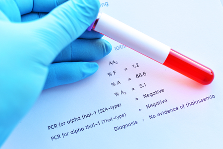 Laboratory result of hemoglobin typing test with blood sample Stok Fotoğraf - 120608495