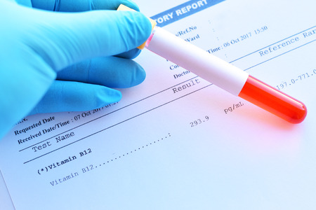 Laboratory result of vitamin B12 test with blood sample tube Stock Photo