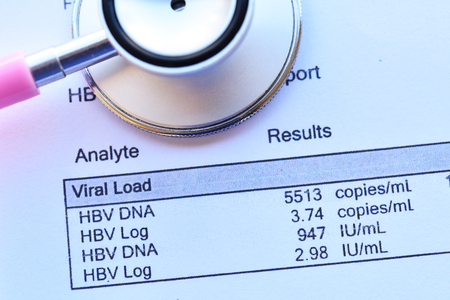 Abnormal high HBV viral load results with stethoscope