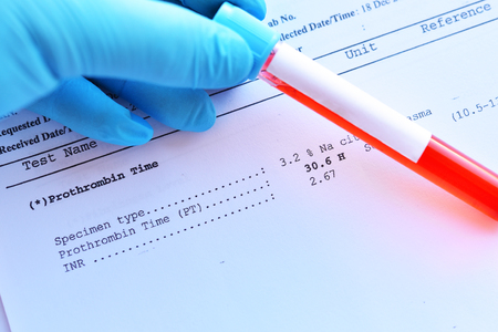 Abnormal high result of prothrombin time test with blood sample tube Stock Photo