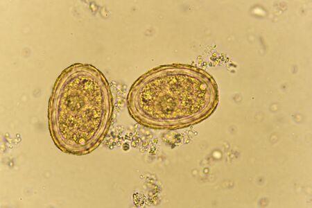 Eggs of Ascaris lumbricoides in stool Stok Fotoğraf