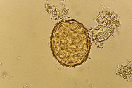 Egg of Ascaris lumbricoides in stool Stok Fotoğraf