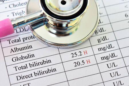 Abnormal high bilirubin test result Reklamní fotografie