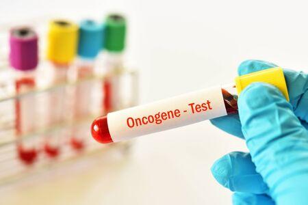 Blood sample tube for oncogene test