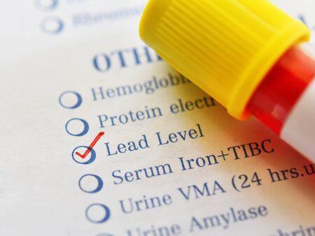 Reagenzglas mit Blutprobe für Bleispiegeltest Standard-Bild