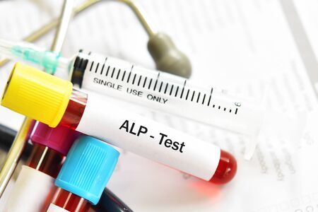 Blood sample tube for ALP or alkaline phosphatase enzyme test