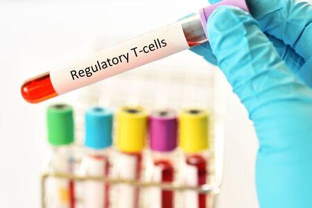 Blood sample tube for Regulatory T cells or Treg cells test Reklamní fotografie