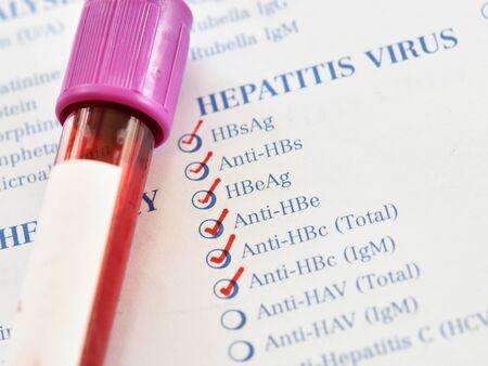 Blood sample tube for hepatitis B virus test Stockfoto