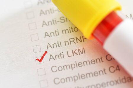 Blood sample for Anti-Liver Kidney Microsomal or Anti-LKM test
