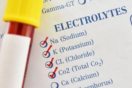 Muestra de sangre para análisis de electrolitos