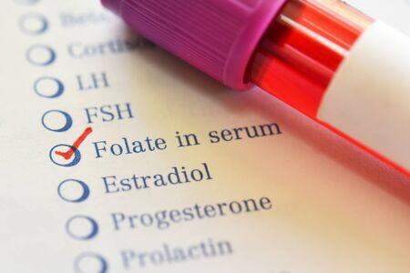 Blood sample tube for folate test Stockfoto