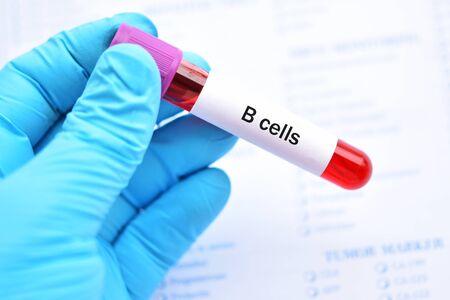 Blood sample tube for B lymphocytes or B cells test