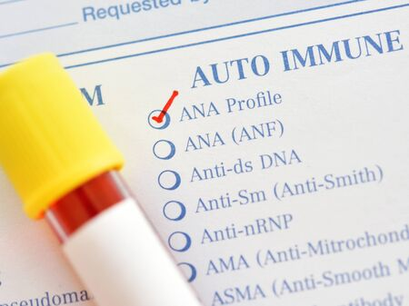 Blood sample for antinuclear antibody or ANA test