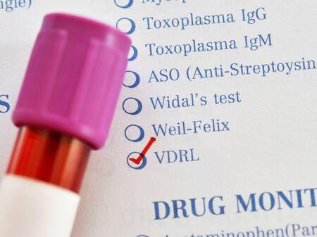 Blood sample tube for VDRL test Banco de Imagens