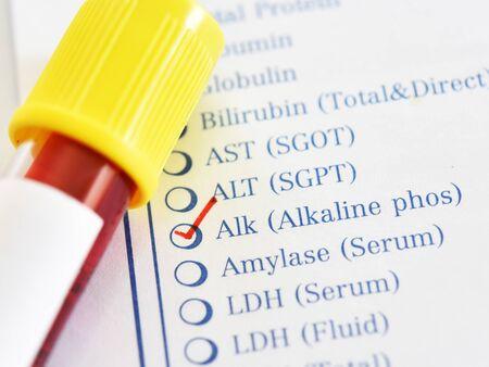 Blood sample tube for alkaline phosphatase enzyme test Banco de Imagens