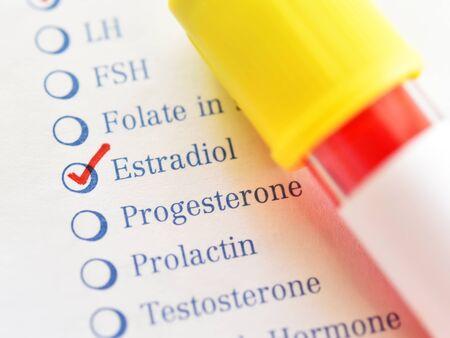 Blood sample tube with laboratory requisition form for estradiol hormone test Banco de Imagens