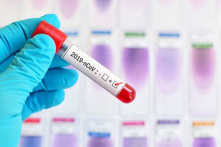 Tubo de muestra de sangre positivo con coronavirus 2019 Foto de archivo