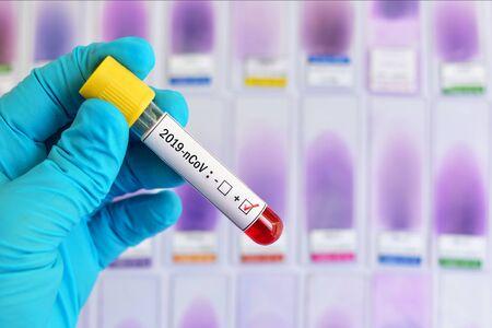 Próbka krwi pozytywna z koronawirusem 2019 lub 2019-nCoV Zdjęcie Seryjne