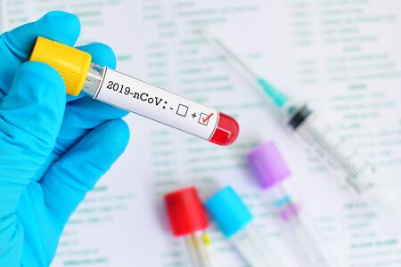 Blood sample tube positive with coronavirus 2019 or 2019-nCoV Stok Fotoğraf