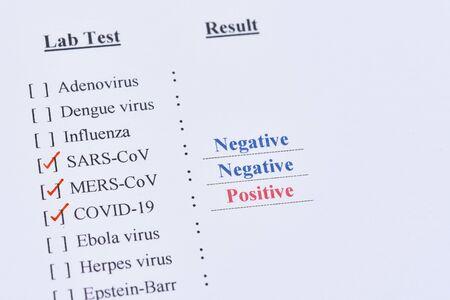 Positives Testergebnis von COVID-19, neuartiges Coronavirus 2019