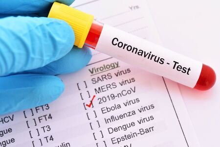 Test tube with blood sample for coronavirus test