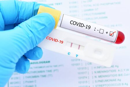 Positive test result by using rapid test device for COVID-19 virus