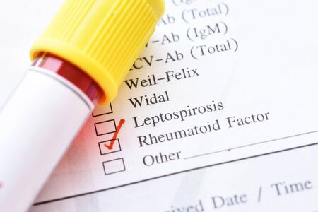Blood sample with laboratory requisition form for rheumatoid factor test