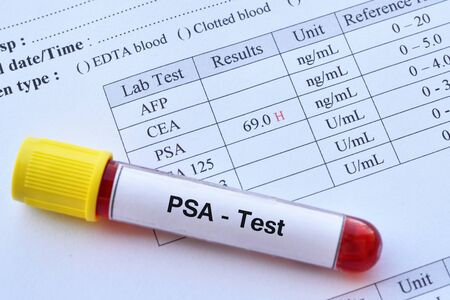 Abnormal high PSA test result with blood sample tube