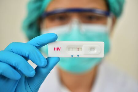 Lab technician holding HIV rapid device test, the result showed positive